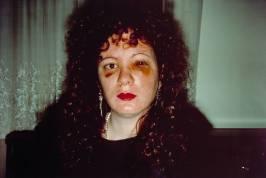 Nan Goldin - Autoritratto un mese dopo essere stata picchiata